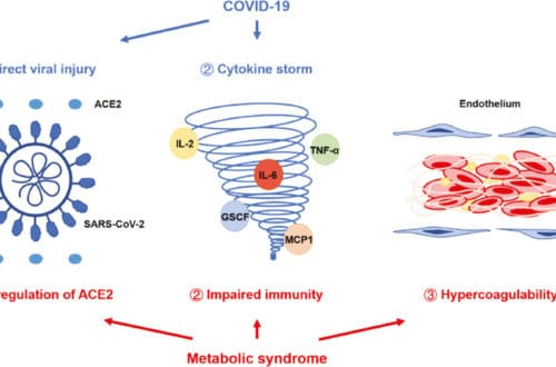 metabolic syndrome interacts with covid 19